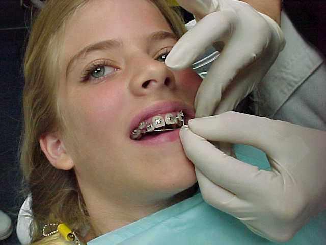 недостатки пластин для выравнивания зубов