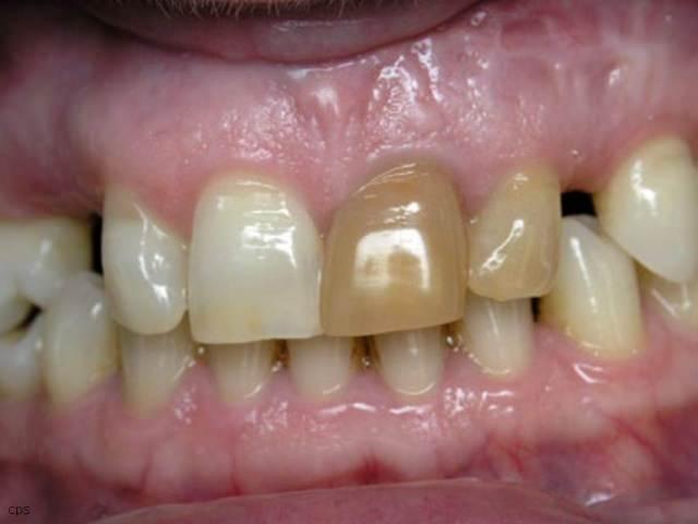 Зуб темнеет