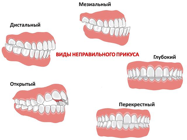 прикус2