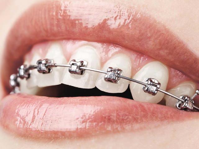 какие бывают пластины для выравнивания зубов