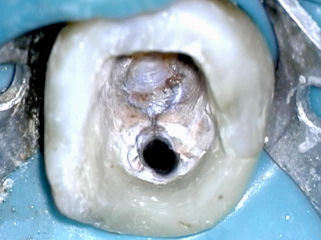 Изменение цвета и фактуры зуба
