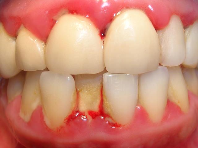 Воспаление десен и зубов