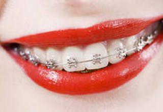 Керамические брекеты - эстетичное и эффективное выравнивание зубов