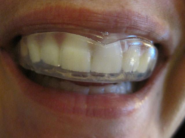 выравнивание зубов пластинами