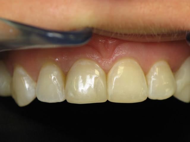 Реминилизация зубов