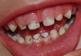 Реставрация зубов при эрозии