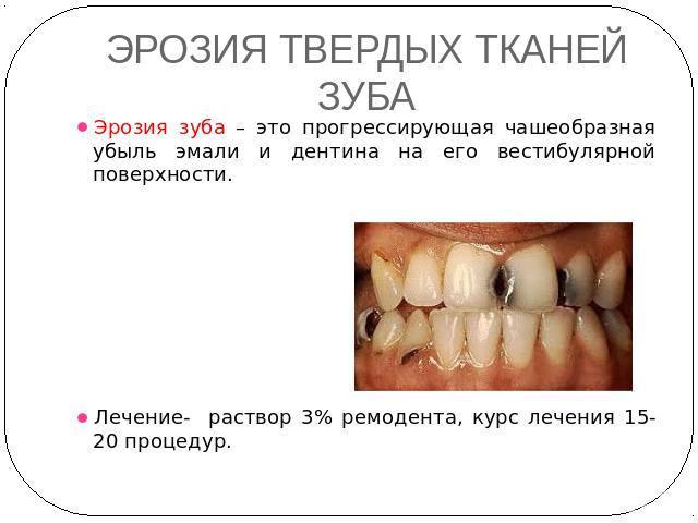 Поражение зуба