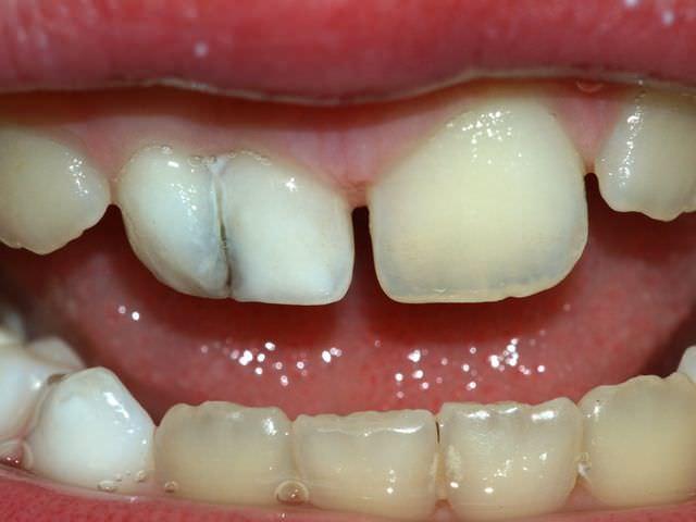 Терапия для зубов