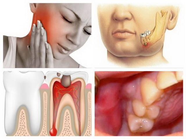 Опухла десна как лечить в домашних условиях