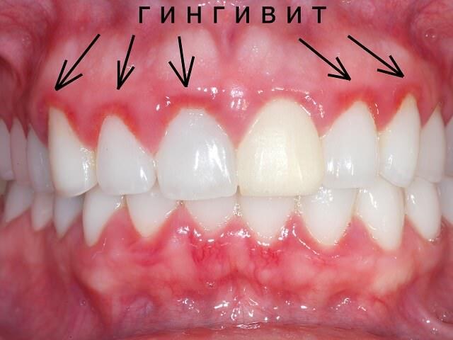 Воспаление и кровоточивость десен при гингивите