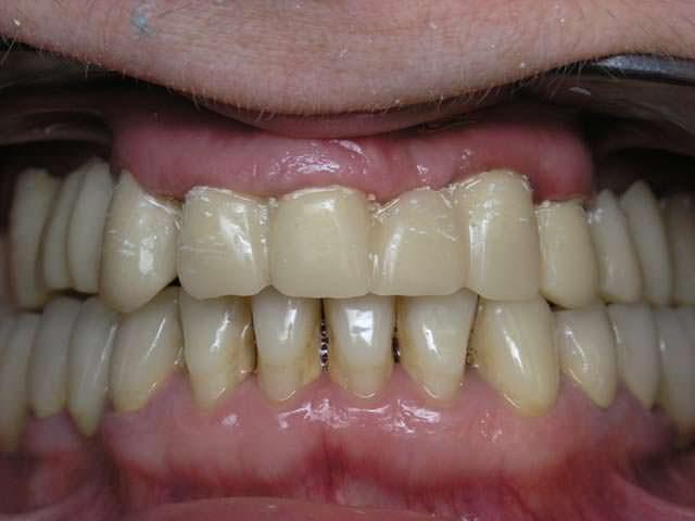 Пример гипоплазии
