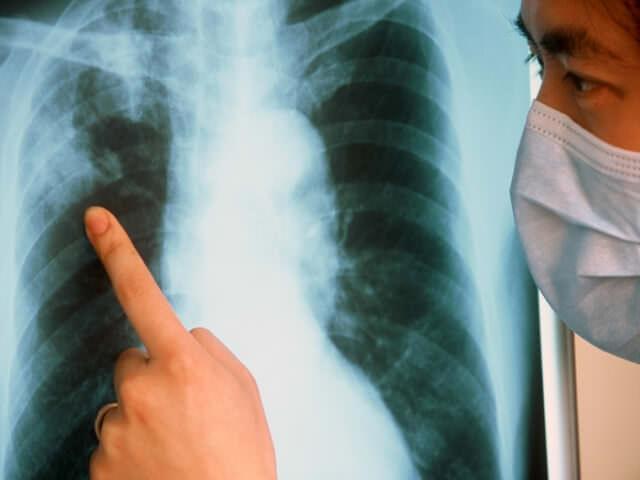 Туберкулез является абсолютным противопоказанием к проведению имплантации зубов