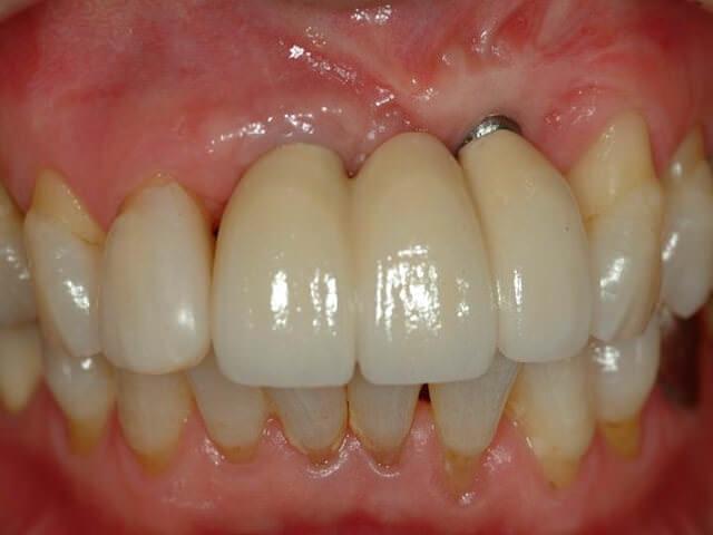 Обнажение имплантата зуба