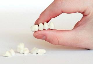 Осложнения после имплантации зубов — отек, боль, температура