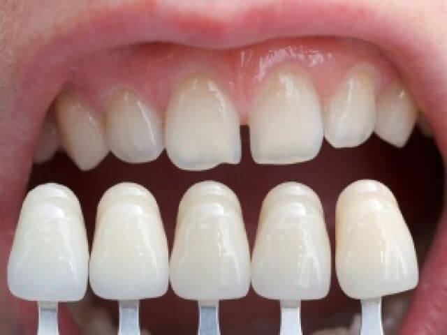 Как выровнять зубы без брекетов, способ выровнять зубы 97