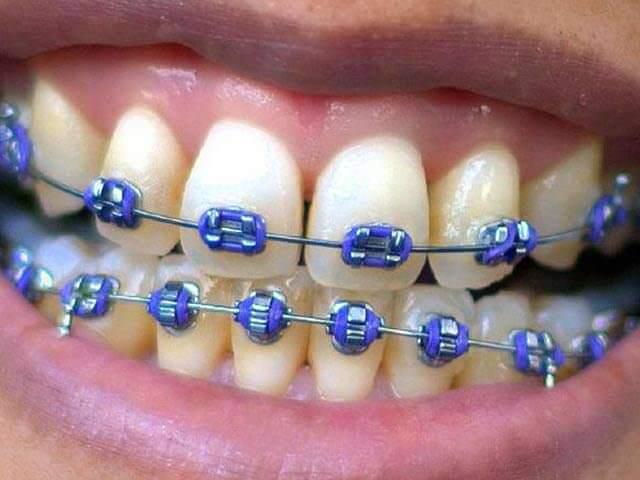 Установка брекетов для выравнивания зубов