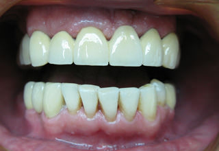 Как устанавливают коронки на передние зубы