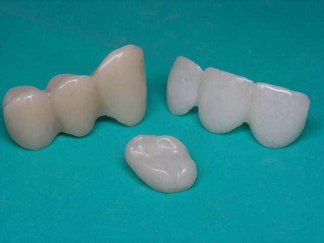 Коронки для зубов