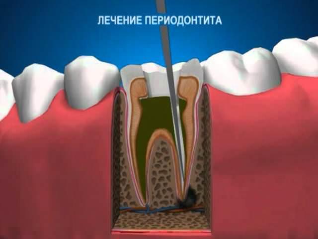 Диагностика гранулематозного периодонтита
