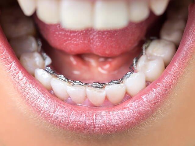 Брекеты на обратной стороне зубов