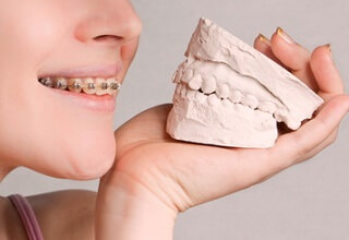 Ортодонтия в стоматологии что это такое видео