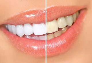 Отбеливание зубов перекисью водорода в домашних условиях, фото