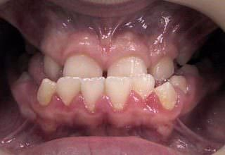 Как исправить глубокий прикус у ребенка — Зубы
