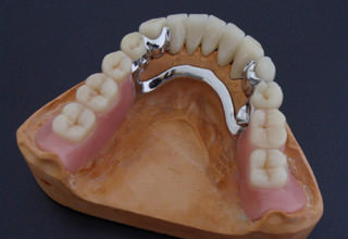 Съемные зубные протезы без неба. Уход за съемными зубными протезами