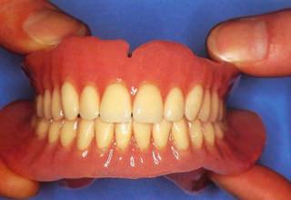 Протезирование при полном отсутствии зубов в Москве, цены, виды, отзывы. Какие протезы лучше если нет зубов на верхней или нижней челюсти