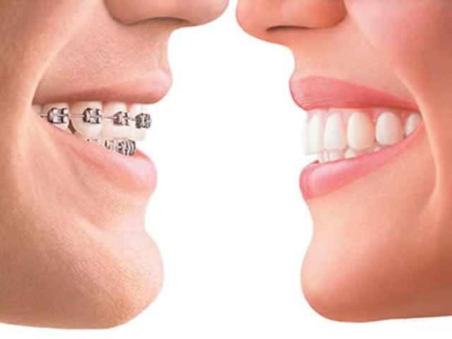 Ровные зубы требуют времени