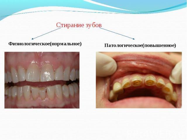 Патологическое стирание зубов