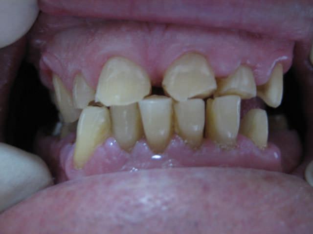 Стирание зубной эмали