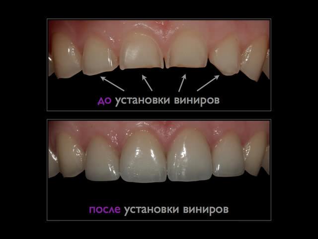 Виниры при стираемости зубов