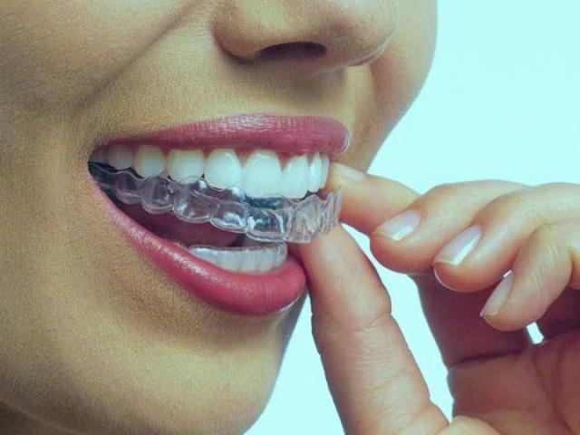 Выравнивание зубов посредством трейнеров
