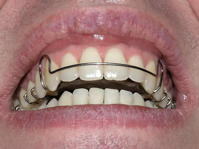 установка пластин для выравнивания зубов