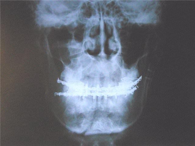 Вывих рентген