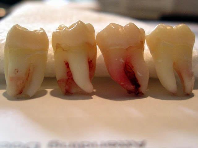 Может ли выпасть сам коренной зуб