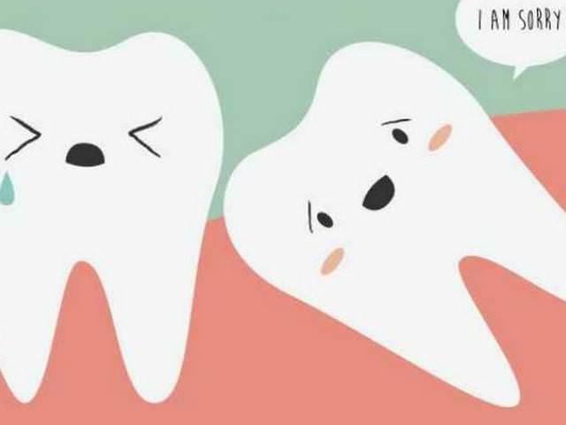 Зуб мудрости растущий поперек остальным зубам
