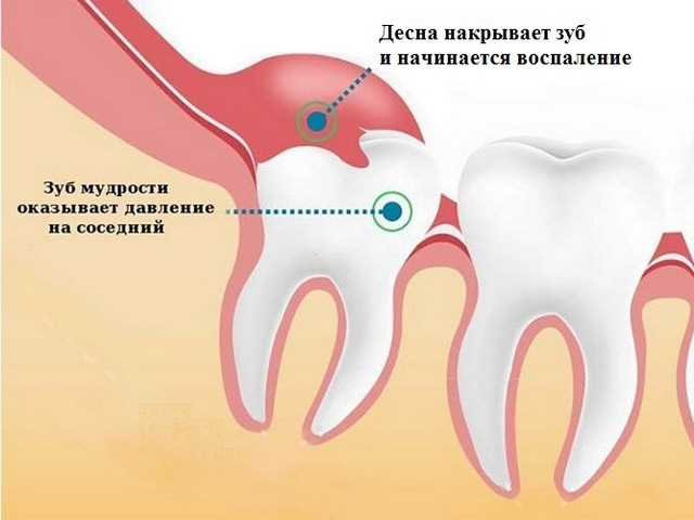 Боль и воспаление при прорезании зуба мудрости