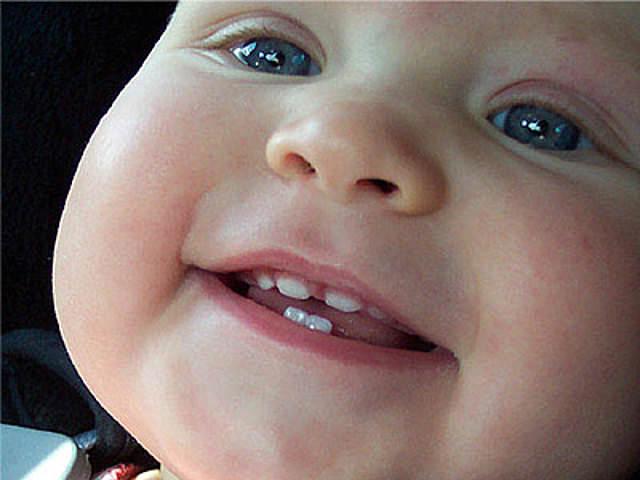 Если у годовалого ребенка желтеют зубы
