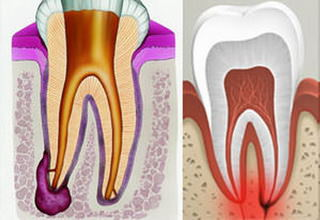Гранулема зуба симптомы и лечение болезни