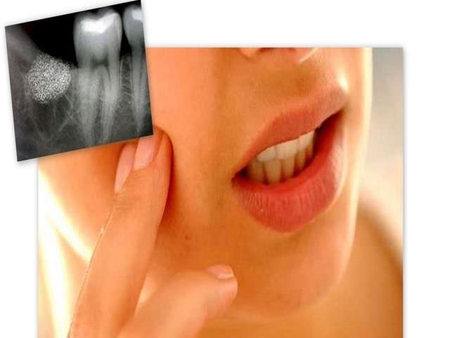 как вылечить зуб