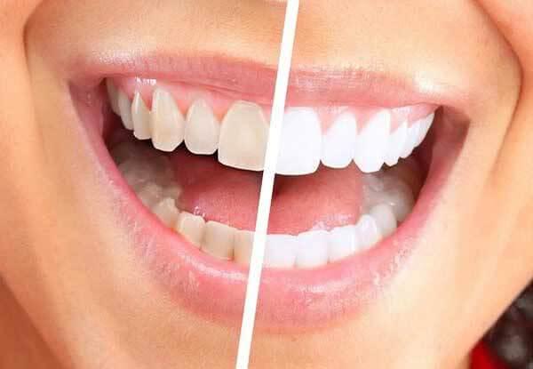 Потемнение зубов, причины