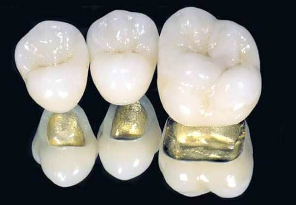 Коронки для зуба