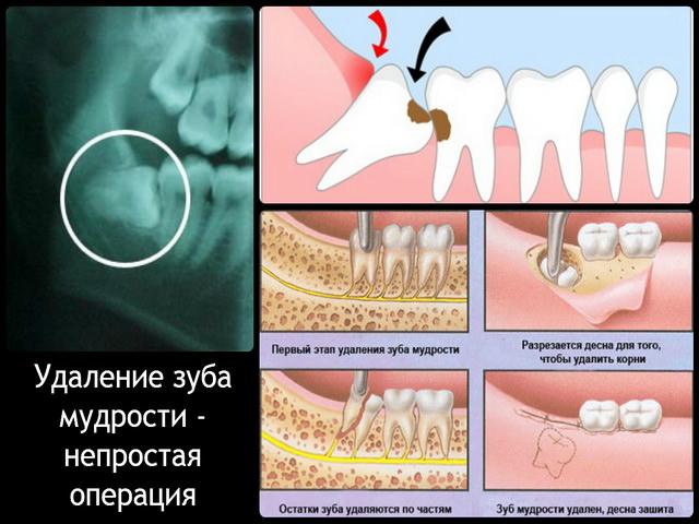 Белая десна после удаления зуба мудрости