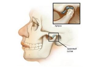 Артроз височно нижнечелюстного сустава симптомы и лечение заболевания лекарства и операция