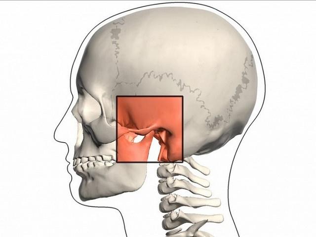 Показано место поражения челюстного сустава