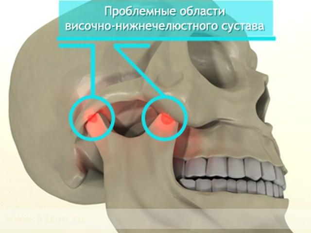 Показаны наиболее уязвимые участки нижней челюсти