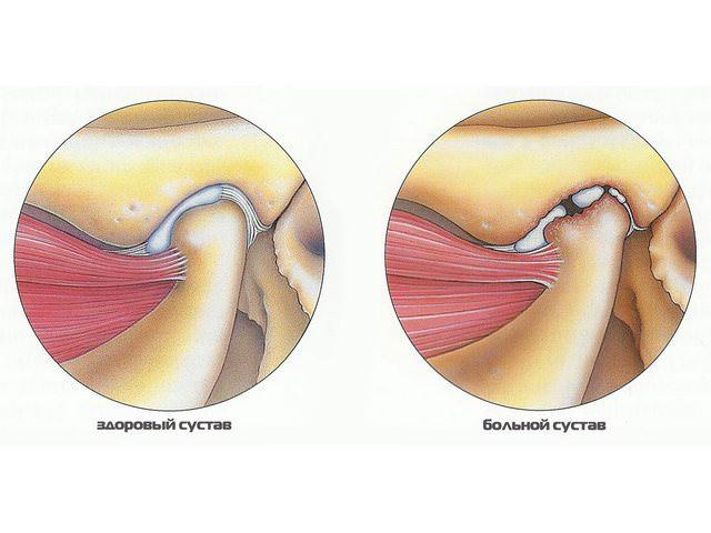 Две картинки, иллюстрирующие разницу между пораженным суставом и здоровым