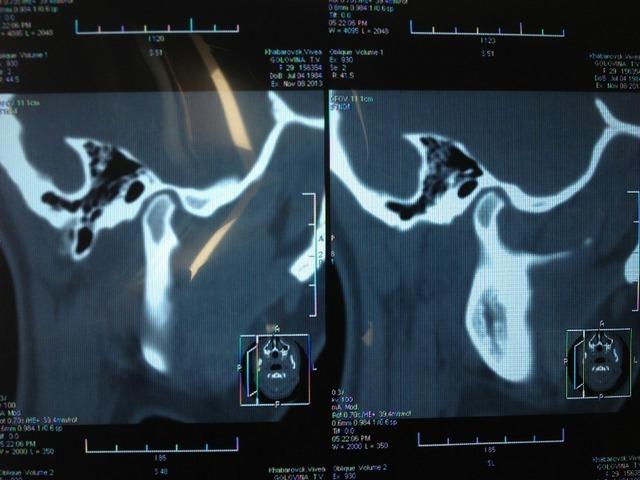 Справа - рентген здоровой челюсти, слева - больной